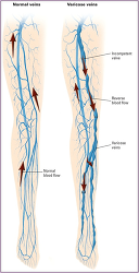 Figure. Vascular cha... - Click to enlarge in new window