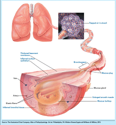 Figure. Bronchial ch... - Click to enlarge in new window