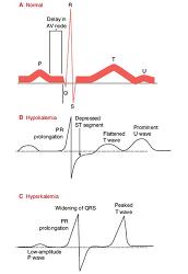 Figure. Potassium im... - Click to enlarge in new window