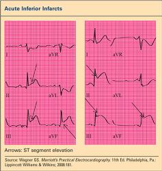 Figure. Acute Inferi... - Click to enlarge in new window