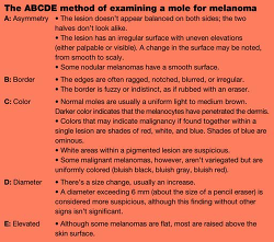 Table The ABCDE meth... - Click to enlarge in new window