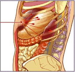 Figure. A gunshot ca... - Click to enlarge in new window