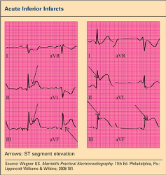 Figure. Acute Inferi... - Click to enlarge in new window